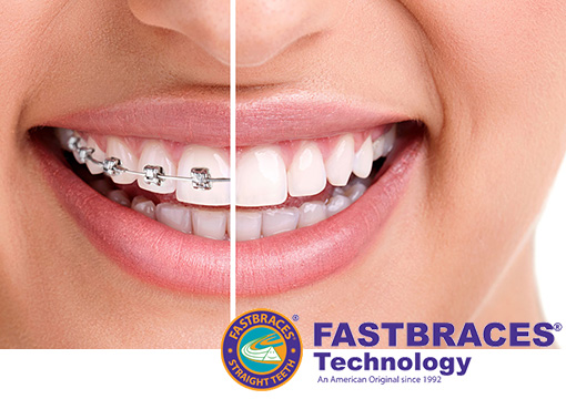 Fastbraces Offered at our Walled Lake MI Dental Office