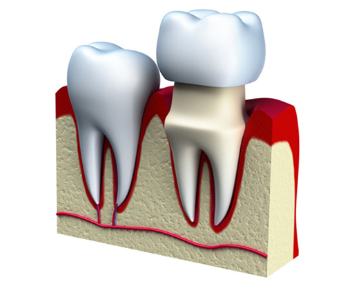 Dental Crowns Offered at you local Commerce Michigan Dentist