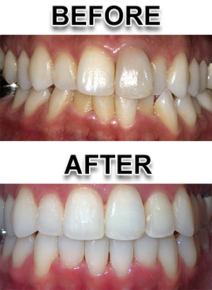 Fastbraces Patient Example from Novi Michigan