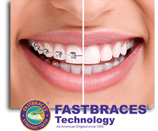 Fist Step in Getting Fastbraces at our Dental Office is to get x-rays