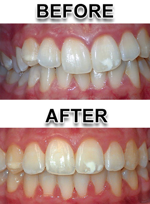Fastbraces Patient Example from Waterford Michigan