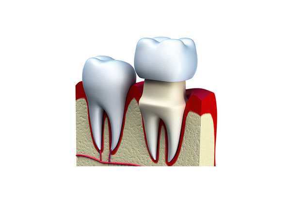 Improve Your Smile With Dental Crowns