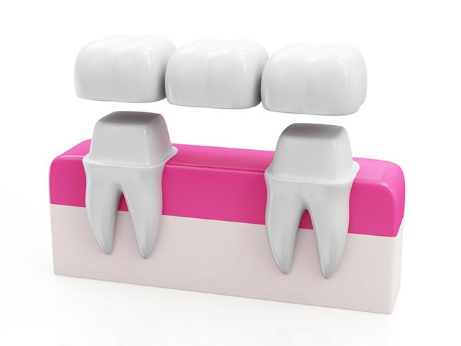 Dental Bridges and Oral Health | Walled Lake Dentist