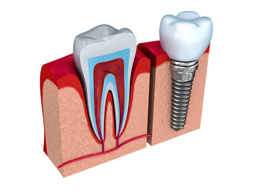 Dental Implants - Wixom Michigan Dentist