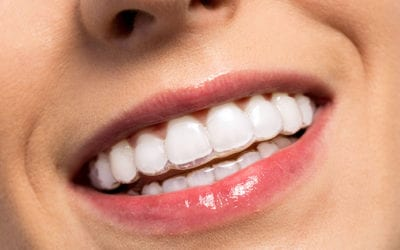 Show Off Your Beautiful Smile with Invisible Braces | Walled Lake Dentist