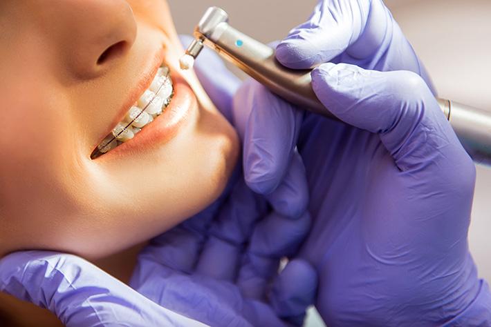 The Dangers of  DIY Braces | Walled Lake Dentist