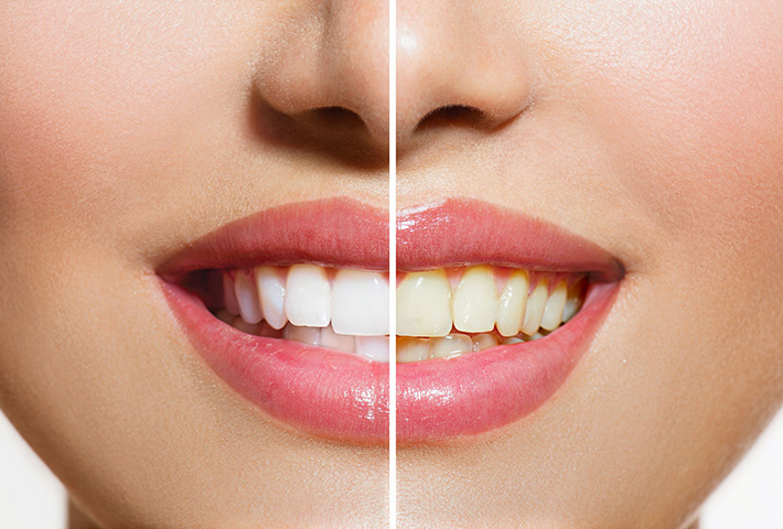 Professional Teeth Whitening: Is It Right for You? | Walled Lake